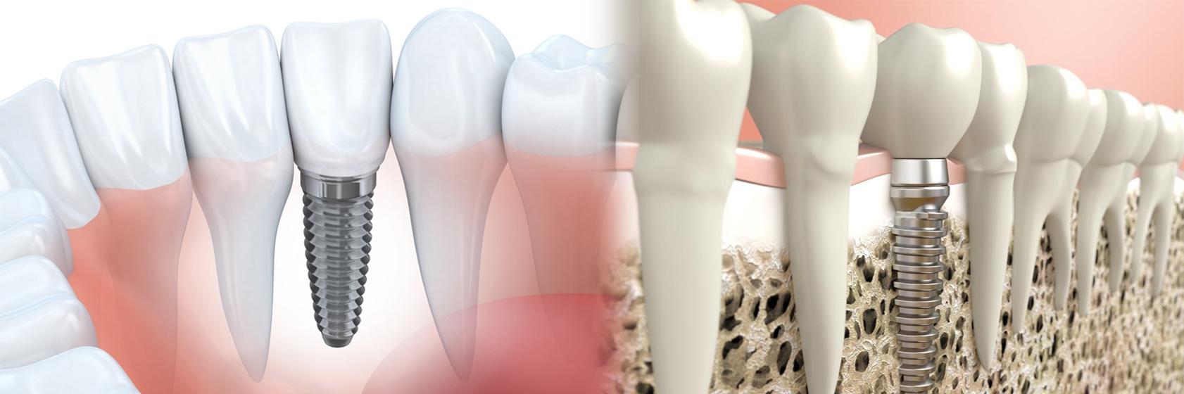 İMPLANT Diş | Üsküdar Libadiye Caddesi Diş Tedavisi